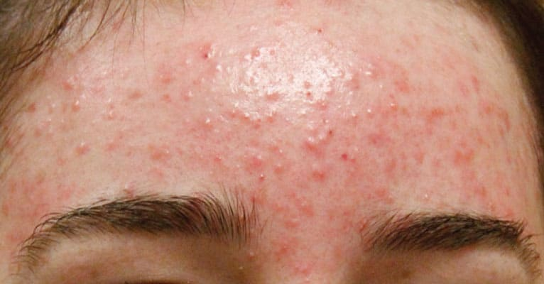 Causes for female adult forehead acne
