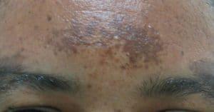 melasma caused by acne