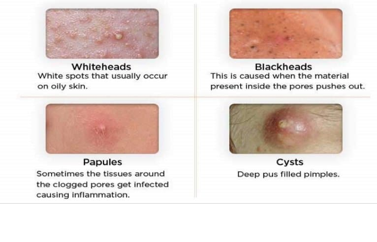 Most people are not aware that there are different types of acne.