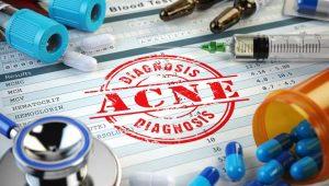 acne diagnosis