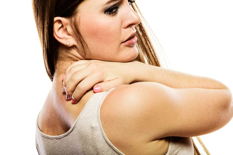 woman with shoulder acne