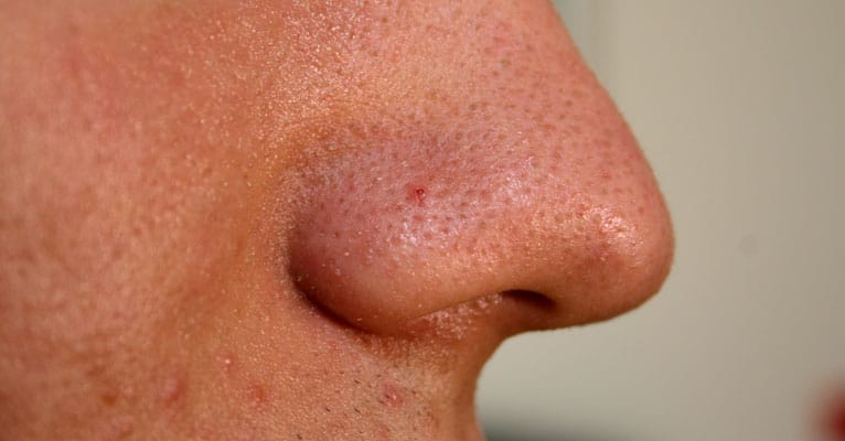 pimples and blackheads