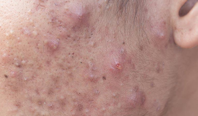 Cystic acne is a more severe form of acne that nearly always requires medical treatment such as oral medication.