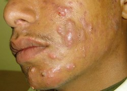 Best Treatments for Latino Acne Problems  Severe Cystic Acne Scars