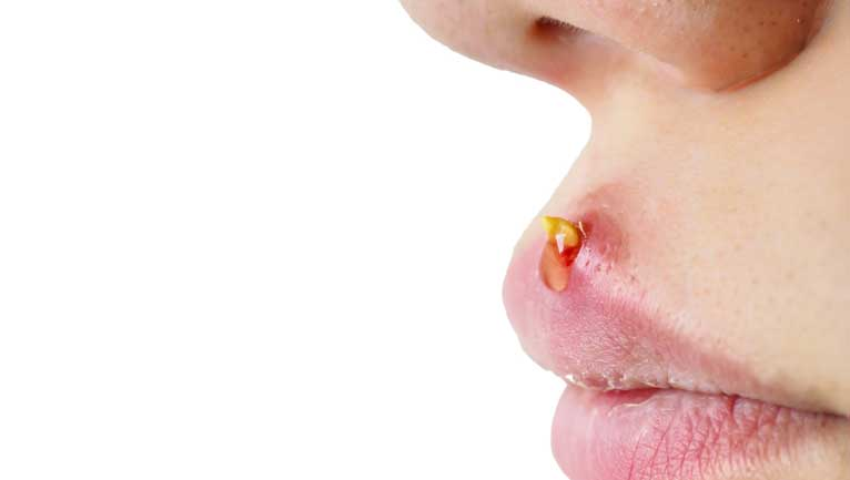 acne around the mouth