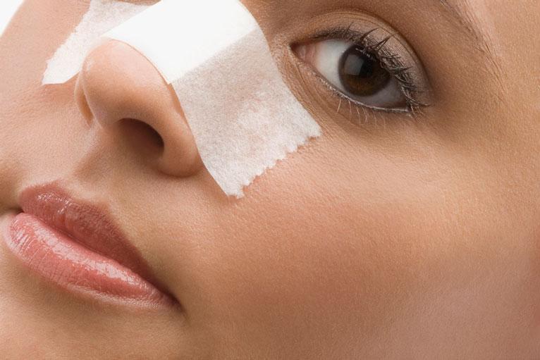 pore strips for preventing acne