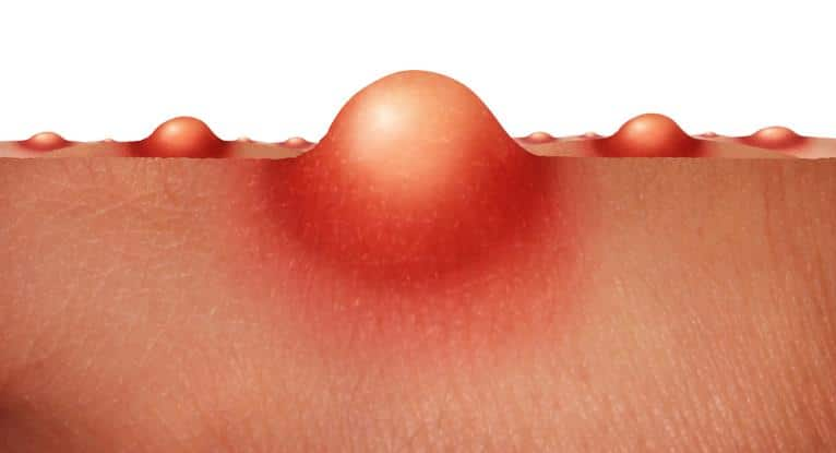 An illustration of how a pimple looks like close up.