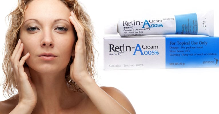 Using retin a for acne