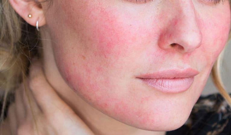 Red facial spots breakout