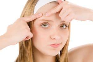squeezing acne