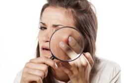 squeezing-pimples