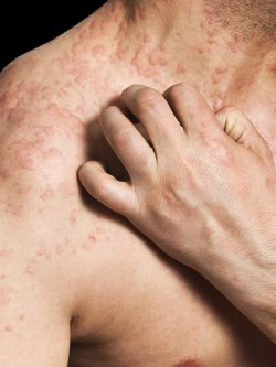 Close-up of man scratching allergic skin