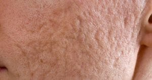 Stem Cell Therapy for Acne Scars