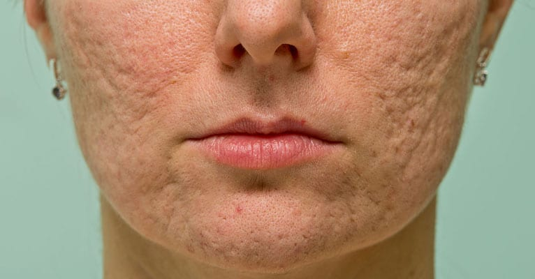 Whiteheads And Blackheads Can Leave Scars, Too