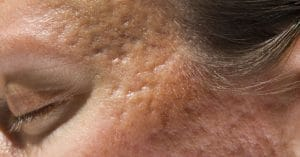 Acne Scars Revolutionizing Treatment