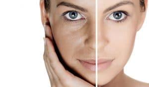 dry skin acne