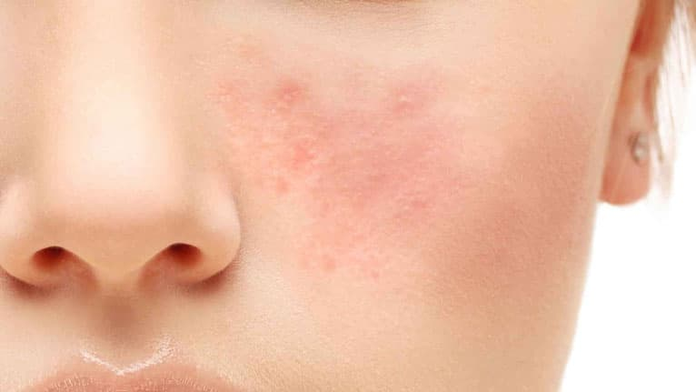 home remedies for acne on face