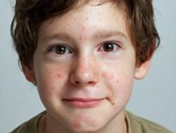 acne-in-children