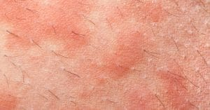 Eczema Acne Treatment Side Effect