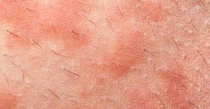 Eczema Acne Treatment Side Effect