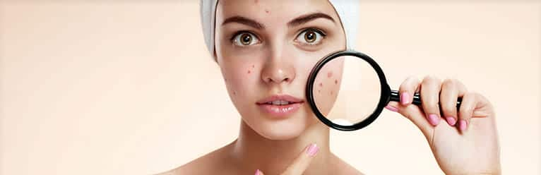 A woman is holding a magnifying glass over her acne spots