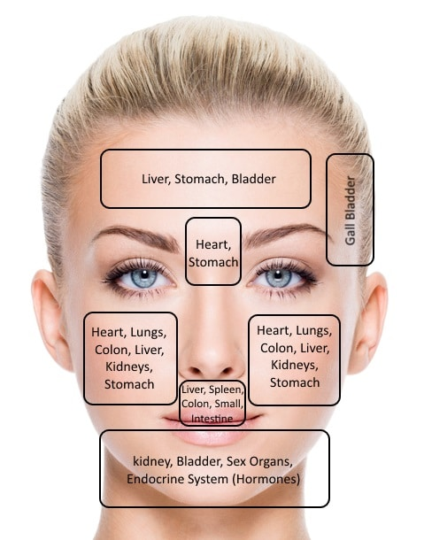 Acne face map