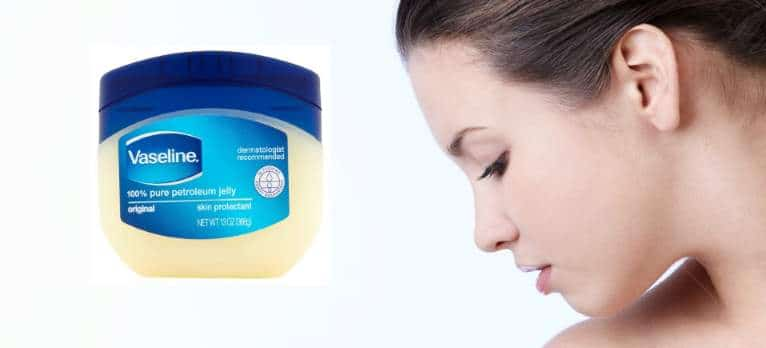 Does vaseline cause acne