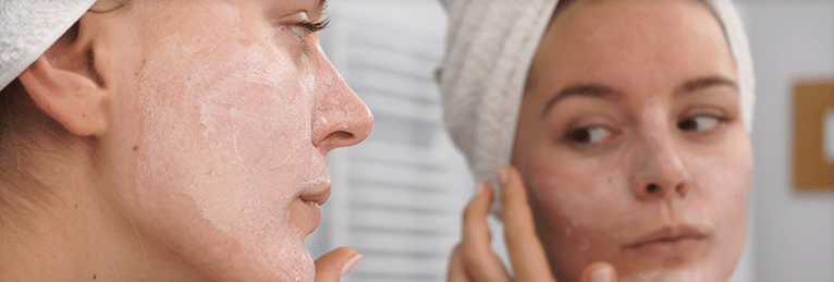 treating acne on different skin types